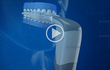 Acceledent Video Thumbnail Hirasuna-Orthodontics-San-Mateo-CA