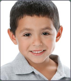 Early-Treatment-at--Orthodontics-of-San-Mateo-Dr-Hirasuna
