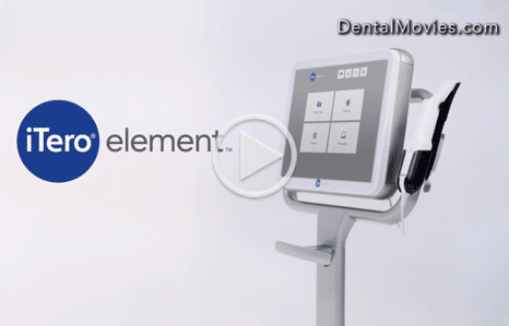 iTero-Video-Thumbnail-Orthodontics-of-San-Mateo